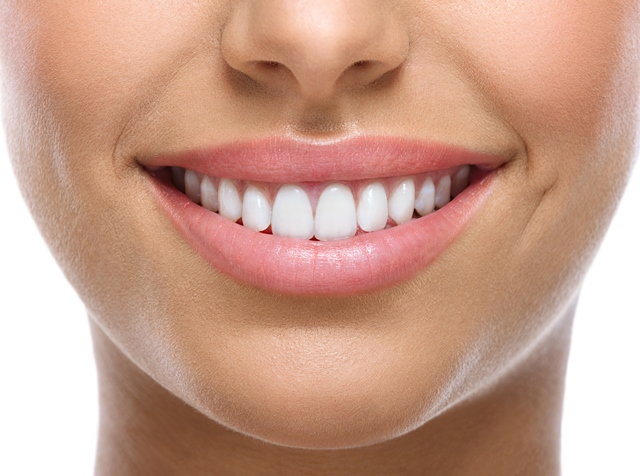 Porcelain Veneers in Turkey