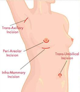 Breast Augmentation in Turkey
