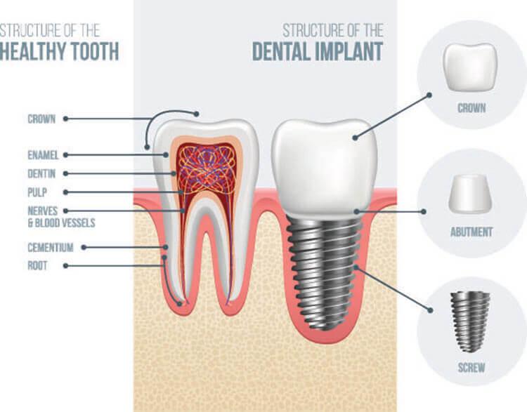Dental Implants in Turkey -