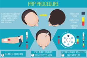 PRP Procedures
