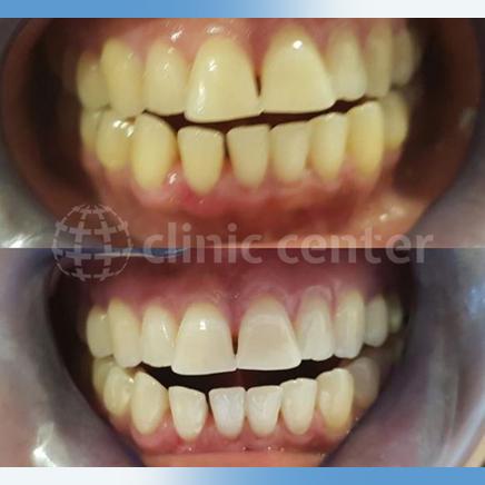 Dental Veneers Crowns Implants Whitening