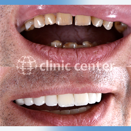 Dental Veneers Crowns Implants Whitening