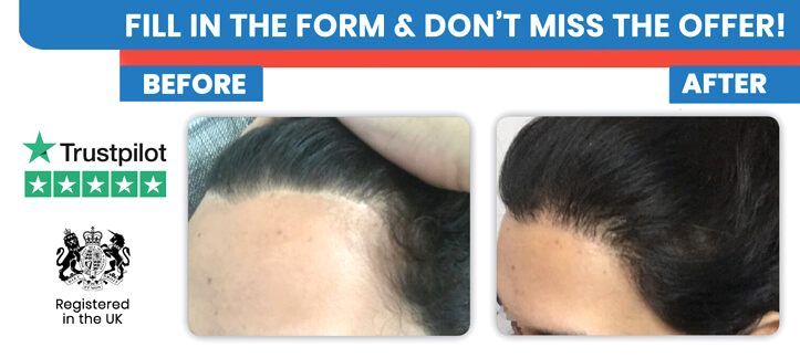 Female Hair Transplant in Turkey