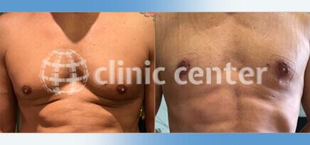 Gynecomastia in Turkey