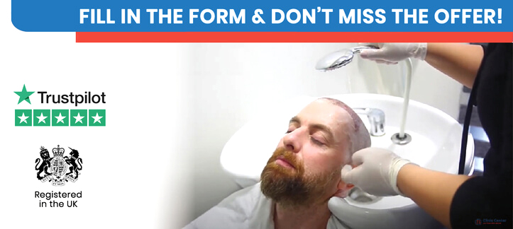 What to do before and after hair transplant