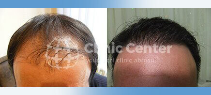 Hair Transplant 3000 Grafts