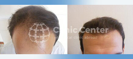 Hair Transplant 2400 grafts