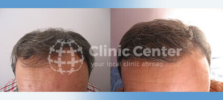 Hair Transplant 1600 grafts