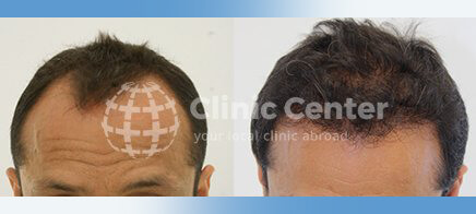 Hair Transplant 2600 graft