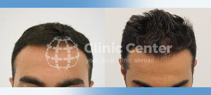 Hair Transplant 1800 graft