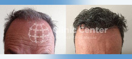 Hair Transplant 3200 graft