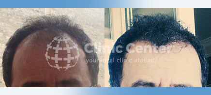 Hair Transplant 3000 graft