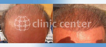 Hair Transplant 3500 graft