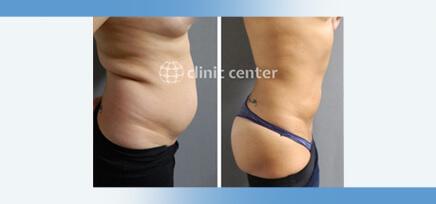 Liposuction in Turkey