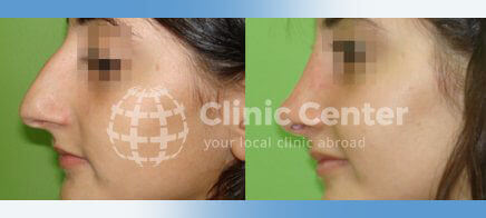 Nose Surgery Gallery