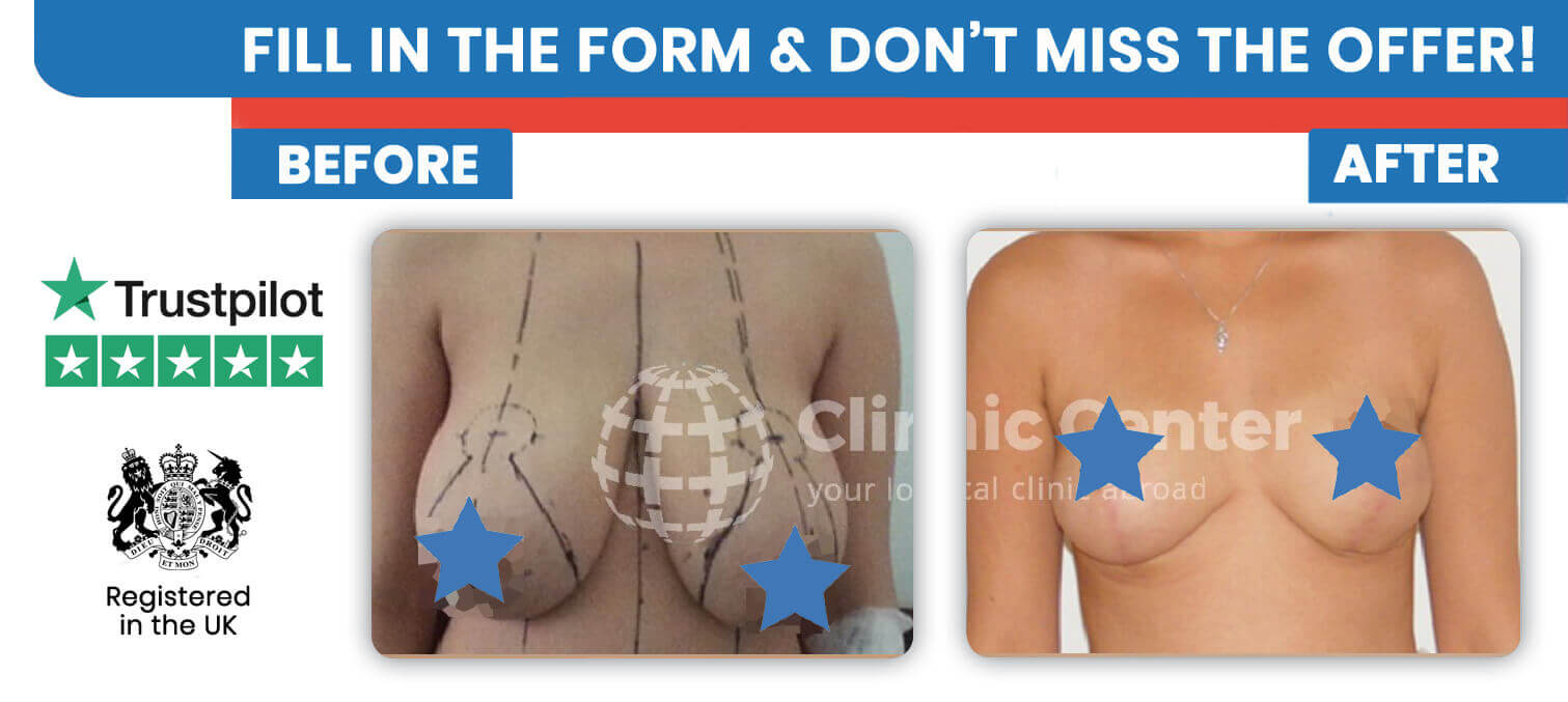 Breast Reduction Surgery Clinic Center