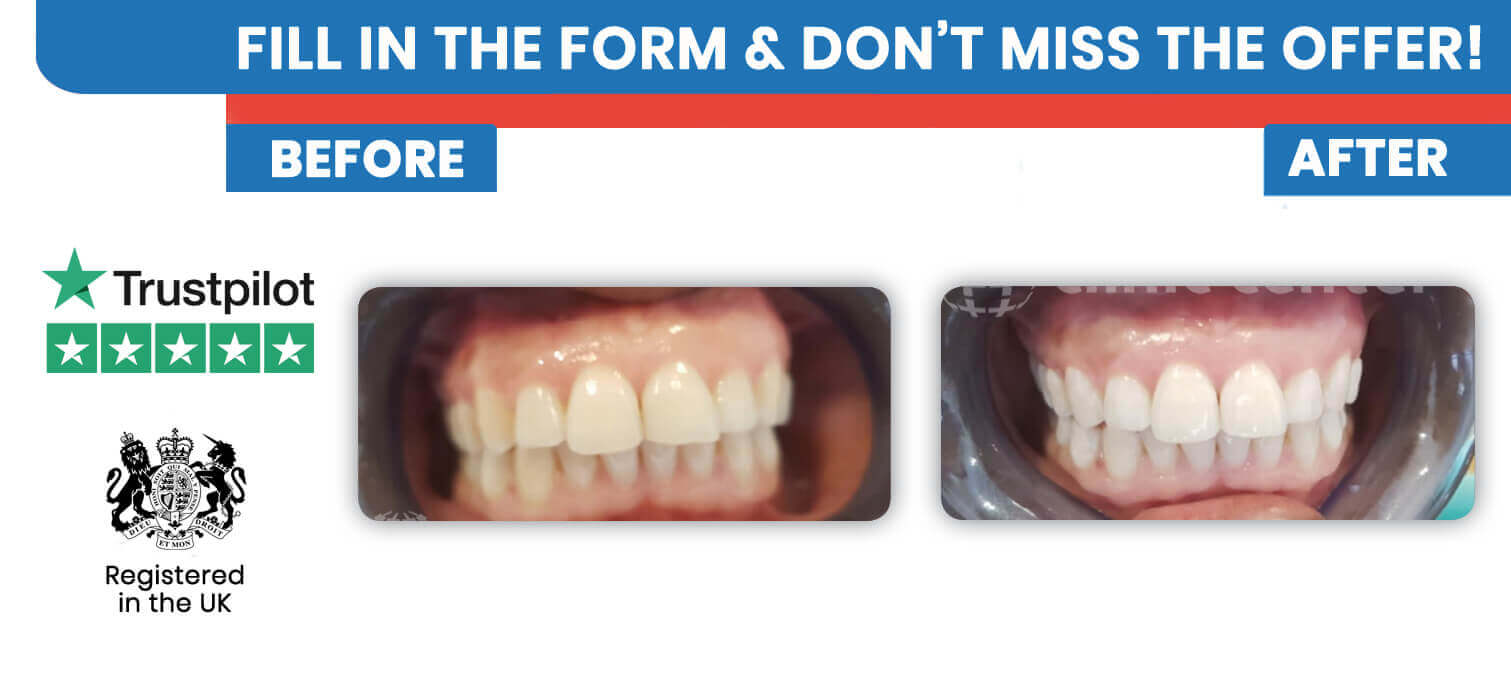 Dental and tooth veneers