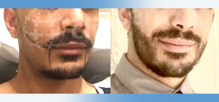 Hair Transplant in Turkey
