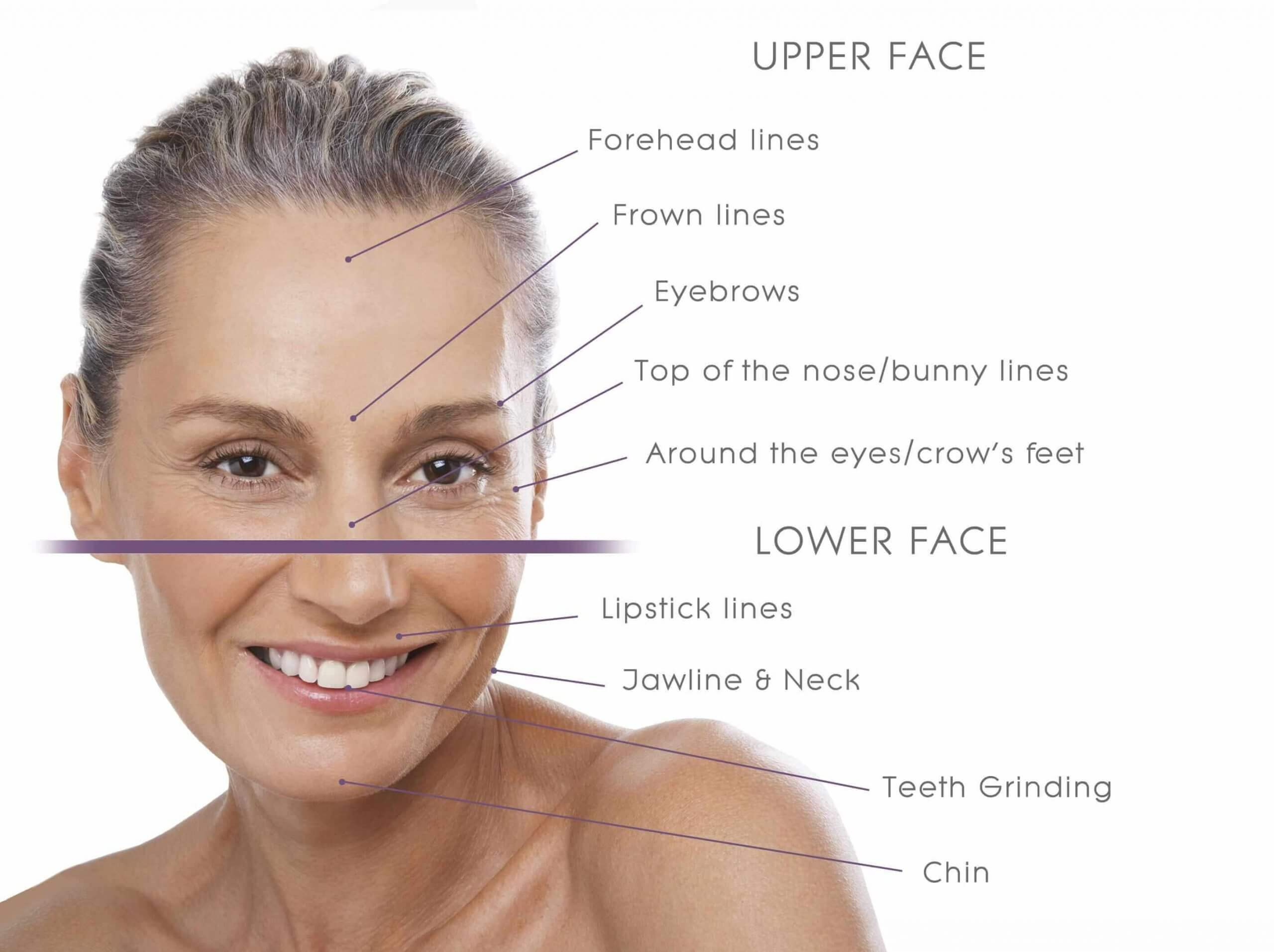 Botox to upper and lower face