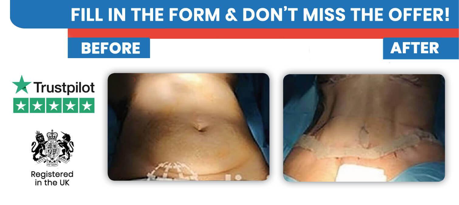 Hi Def Vaser Liposuction in Turkey