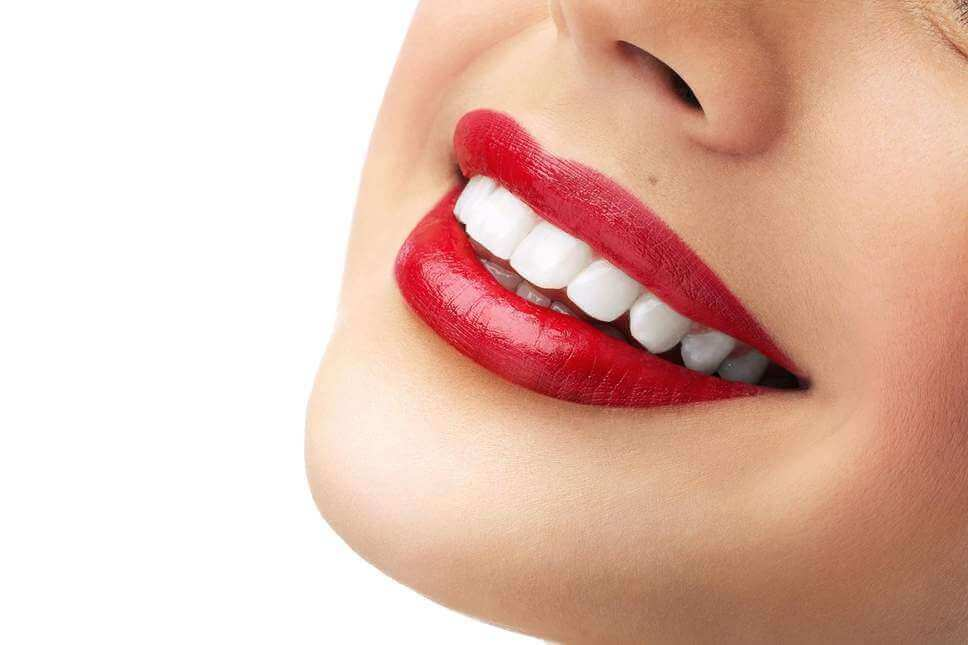 Hollywood Smile in Turkey