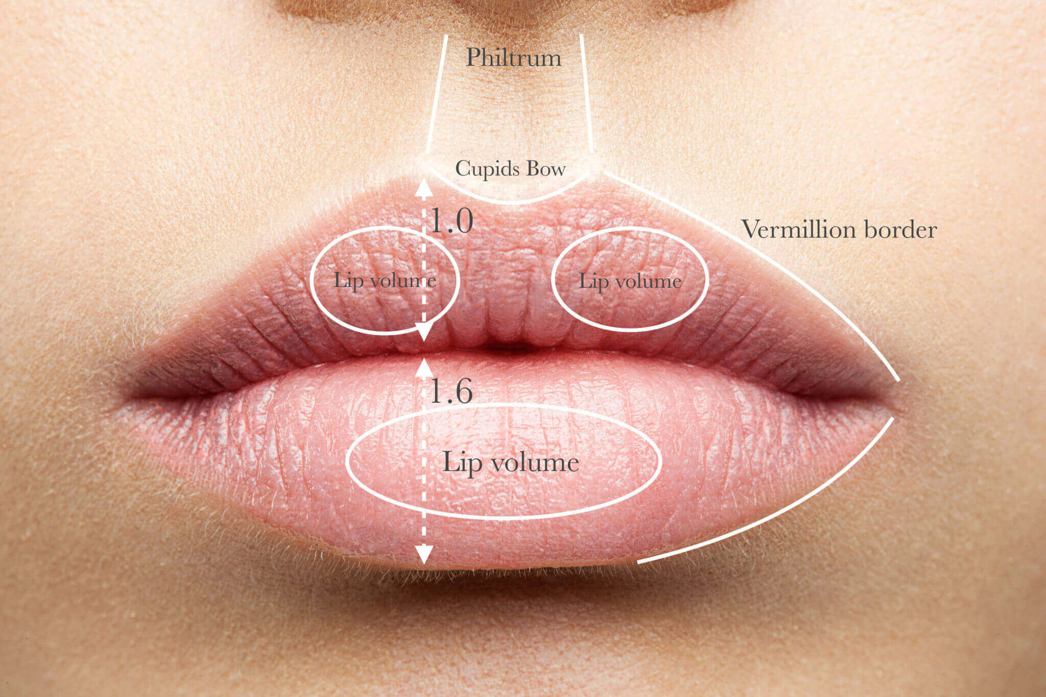 Lip Fillers with Fat Injection