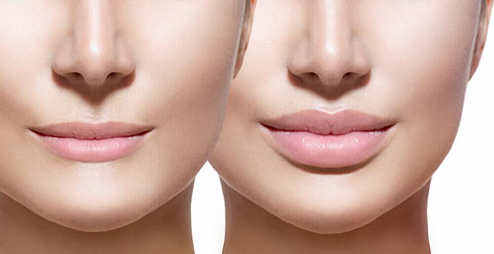 Lip fillers in Turkey