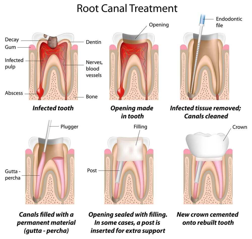 Root Canal Treatment in Turkey