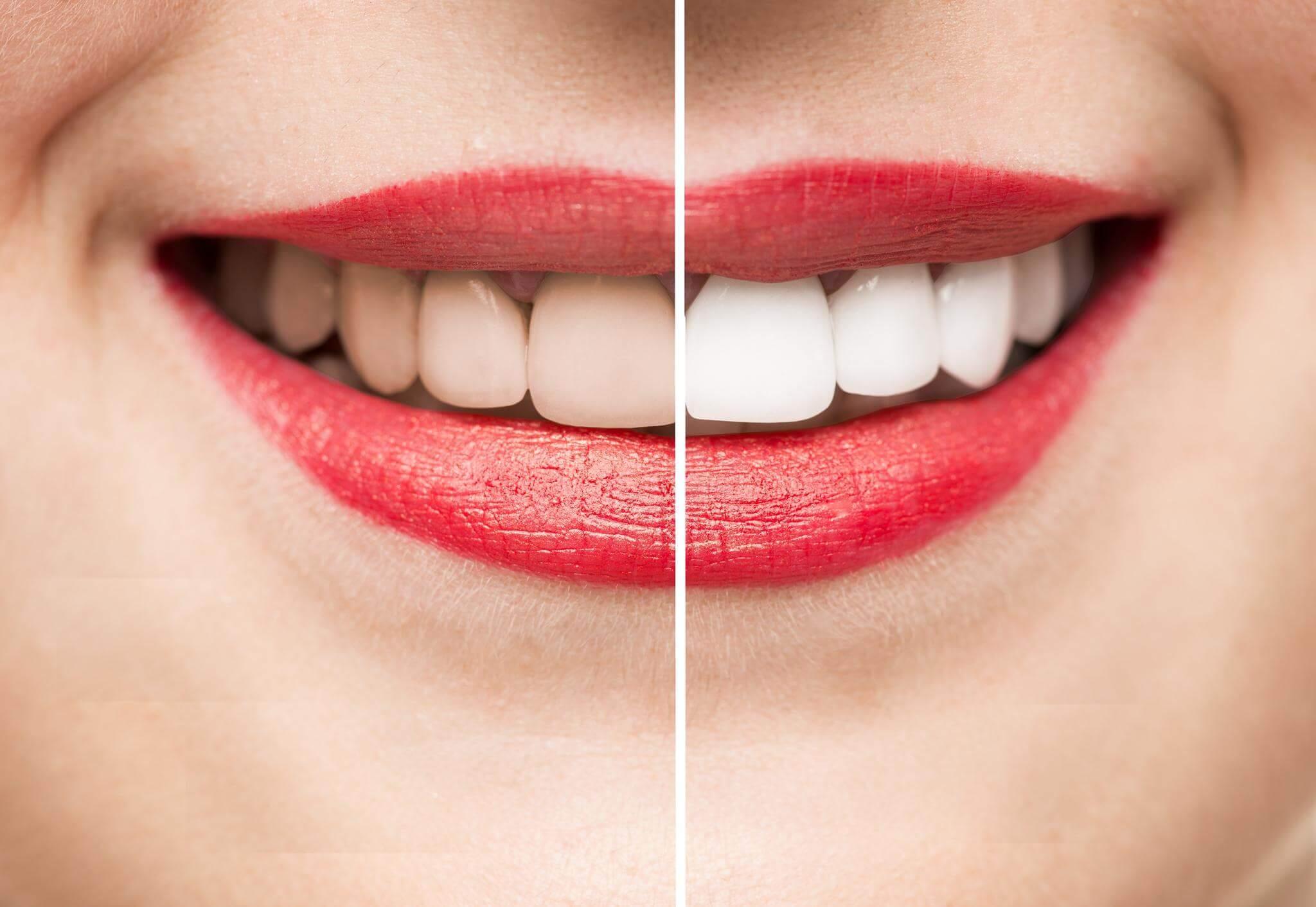 Teeth Whitening in Turkey (1)